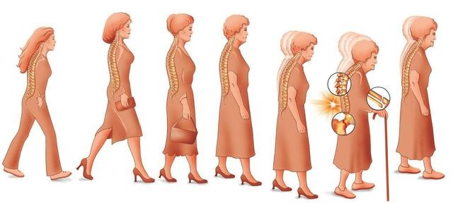 老年人容易患骨质疏松的三个原因